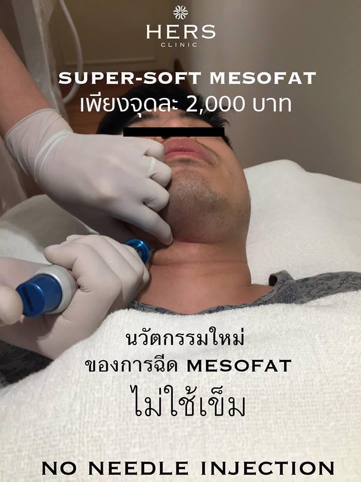 mesofat
