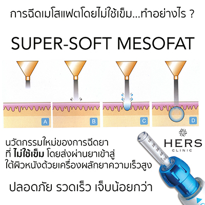 supersoft_hers_mesofat