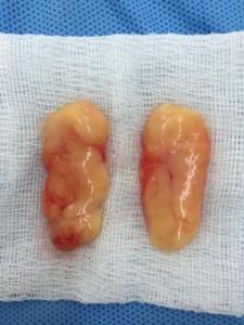 ผ่าตัดไขมันกระพุ้งแก้มที่ HERS clinic