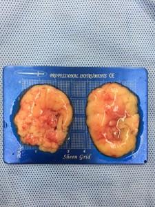 ผ่าตัดไขมันกระพุ้งแก้ม HERS clinic